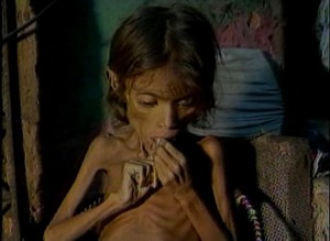 desnutrida 2